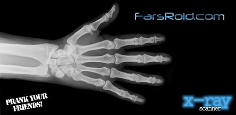 X-Ray Scanner - اسکنر اشعه ی X برای اندروید